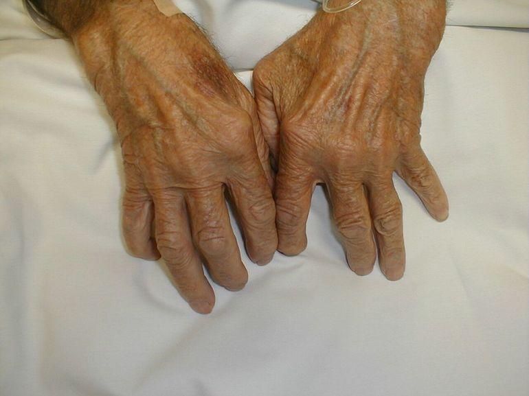 Я вылечился от ревматоидного артрита народными средствами фото