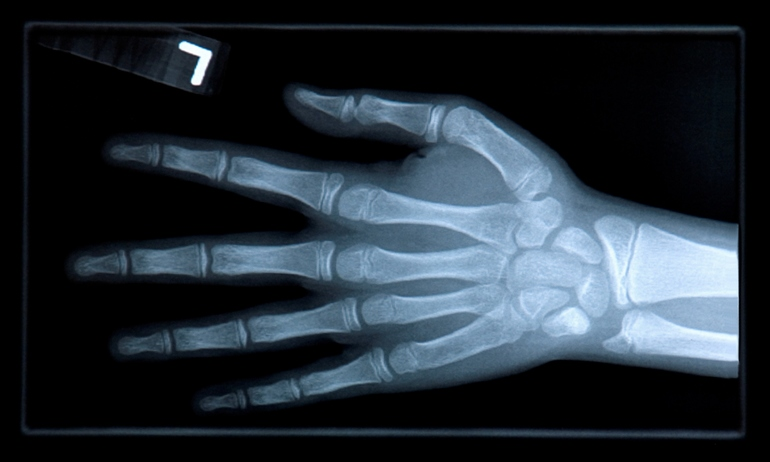 Чем вредно хрустеть пальцами