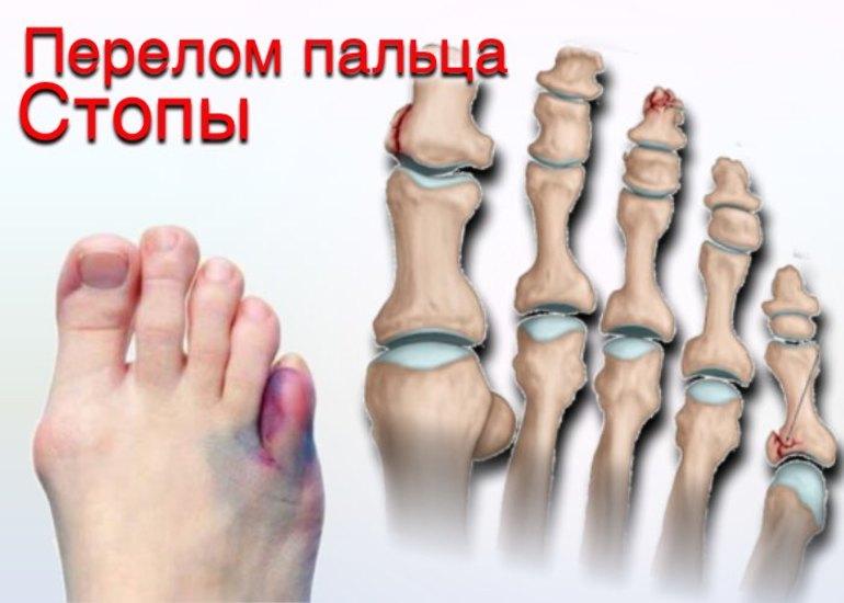 Фаланга пальцев ноги картинки