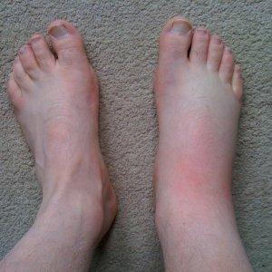 Почему отекает одна левая нога больше в щиколотке у женщин, отекает правая стопа