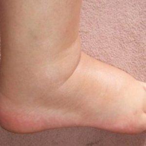 Почему отекают ноги в щиколотках: причины и лечение