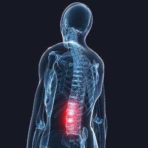 Грыжа крестцового отдела позвоночника симптомы и лечение