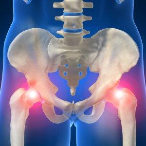 Заболевание тазобедренного сустава симптомы и лечение — Суставы