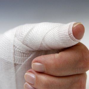 Сильно ушиб палец