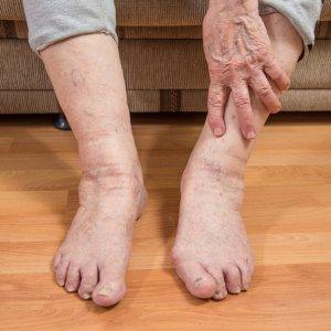 Отки ног у пожилых