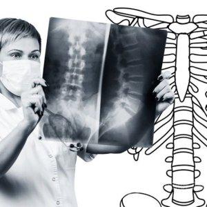 Субхондральный склероз: причины болезни, лечение патологии суставных поверхностей и замыкательных пластинок