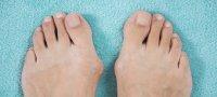 Шишка на большом пальце ноги причины