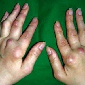 На указательном пальце на суставе растет шишка