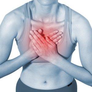 Невралгия грудной клетки чем лечить симптомы