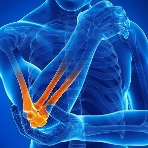 Воспаление связок локтевого сустава симптомы и лечение