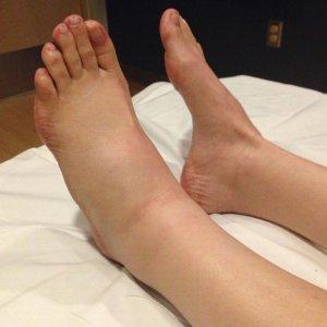 Шишки на ногах голени под кожей спереди и сзади лечение