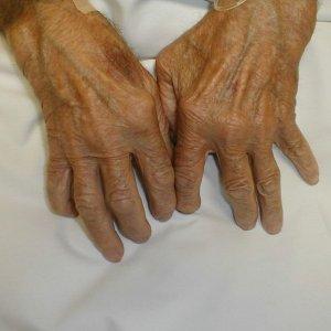 Лечение ревматоидного артрита народными средствами и питанием