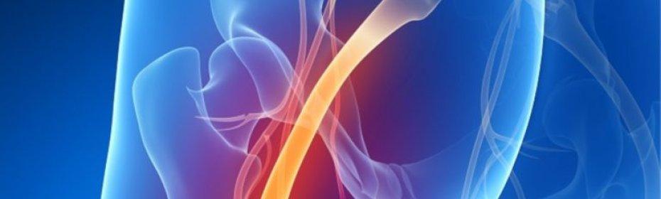 Как вылечить защемление нерва в пояснице отдает в ногу