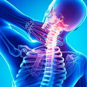 Что такое спондилез позвоночника и как его лечить