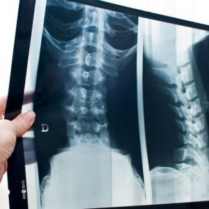 Подготовка к рентгену пояснично-крестцового отдела позвоночника и процедура