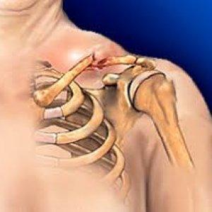 Акромиально ключичный сустав: как устроен, травмы и болезни
