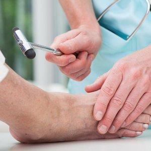 Лечение и профилактика парестезии или онемения конечностей. Что такое парестезия нижних конечностей?