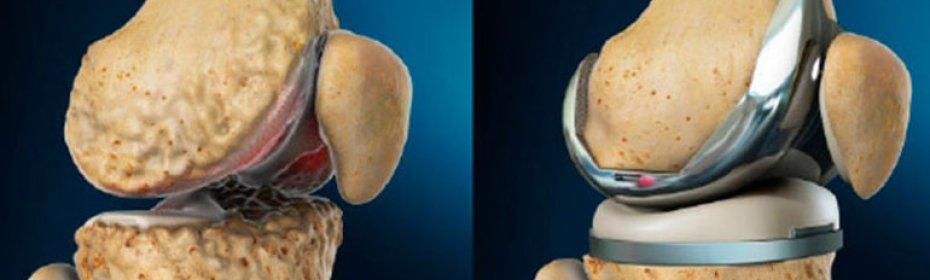 Протезирование при гонартрозе коленного сустава