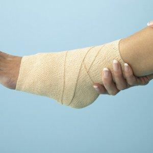 Подвернула ногу и опухла щиколотка: что делать и как лечить?