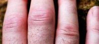 Почему опухают пальцы, кисти и руки — причины и методы лечения