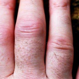 Почему опухают кисти рук: причины, диагностика и лечение