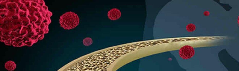 Рак костей и суставов ноги: симптомы, сколько живут?