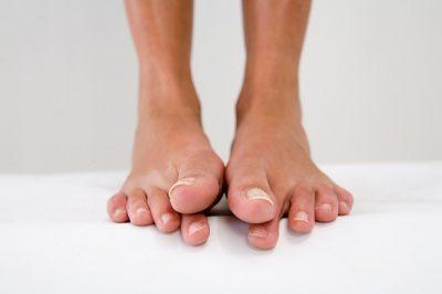 Немеют пальцы ног: причина и что делать, лечение