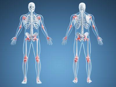 Почему немеют пальцы на ногах что делать как лечить онемение