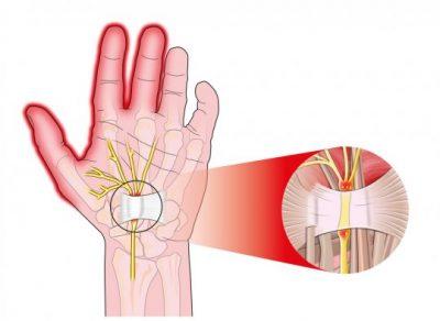 Изображение - Слабость в суставах пальцев tynnelnuj-sindrom-400x292