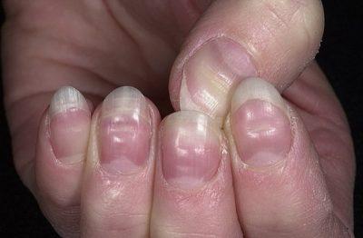 Кривой ноготь на большом пальце руки