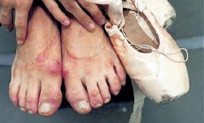 Ноги балерин без пуантов фото