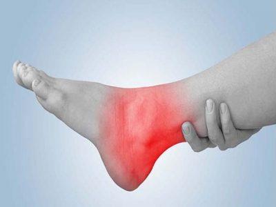 Изображение - Повязка на голеностопный сустав техника наложения perelom-golenostopa8-400x300