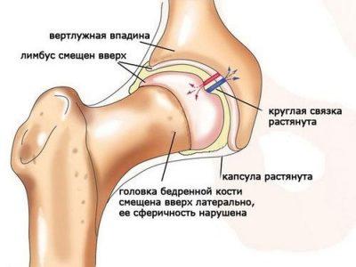Изображение - Консервативное лечение тазобедренных суставов koksartroz-1-400x300