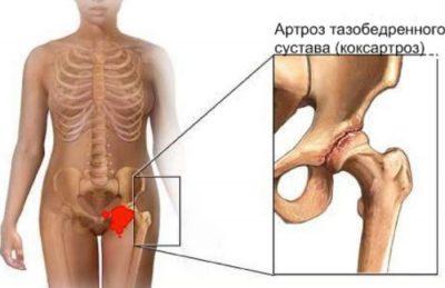 Изображение - Консервативное лечение тазобедренных суставов koksartroz-2-400x259