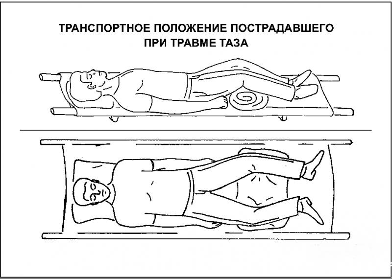 Перелом таза Первая помощь и лечение