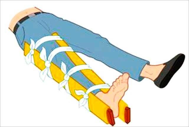 Первая помощь при переломах костей. Особенности оказания помощи при закрытых и открытых переломах