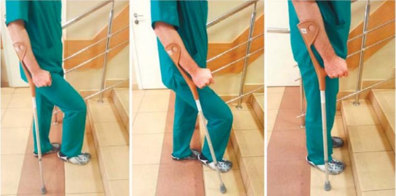 Реабилитация при эндопротезировании тазобедренного сустава: восстановление после операции