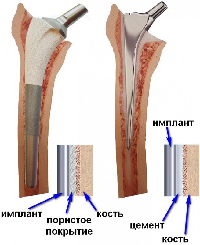 Как работает эндопротез тазобедренного сустава