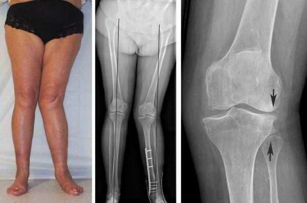 Артрит или воспаление суставов на ногах: лечение нижних конечностей, симптомы и причины возникновения