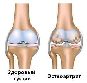 Чем лечить воспаленный сустав на ноге