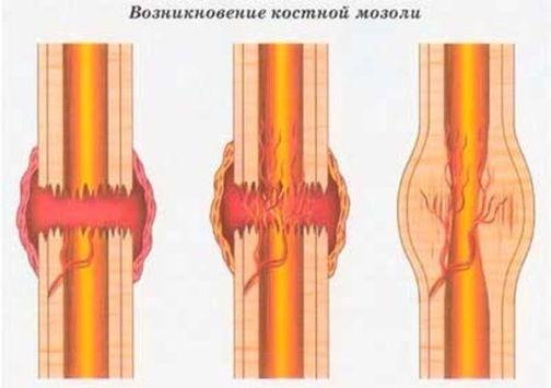 Почему не срастается кость после перелома и что делать в такой ситуации