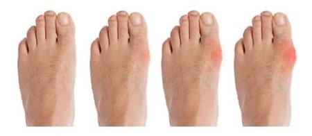 Как снять воспаление суставов на ногах