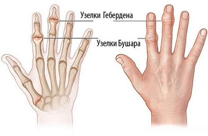 Изображение - Увеличение суставов пальцев рук заболевание uzelki_pri_artrit_palczev_ruk_1513914503_5a3c80873c6fe