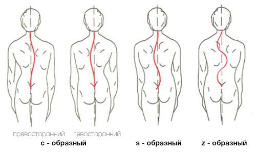 Упражнения с палкой для спины при сколиозе